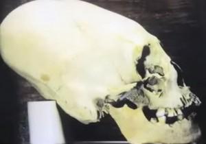 crâne dolichocéphale